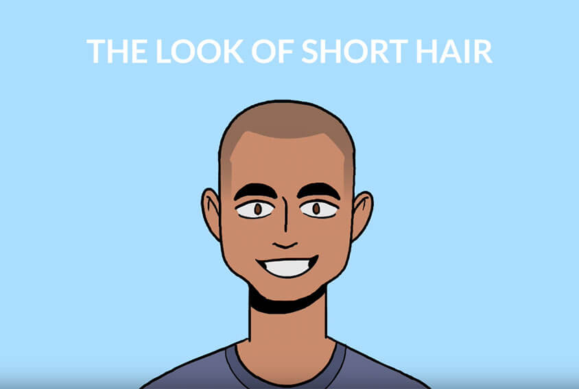 scalp micropigmentation results on short hair