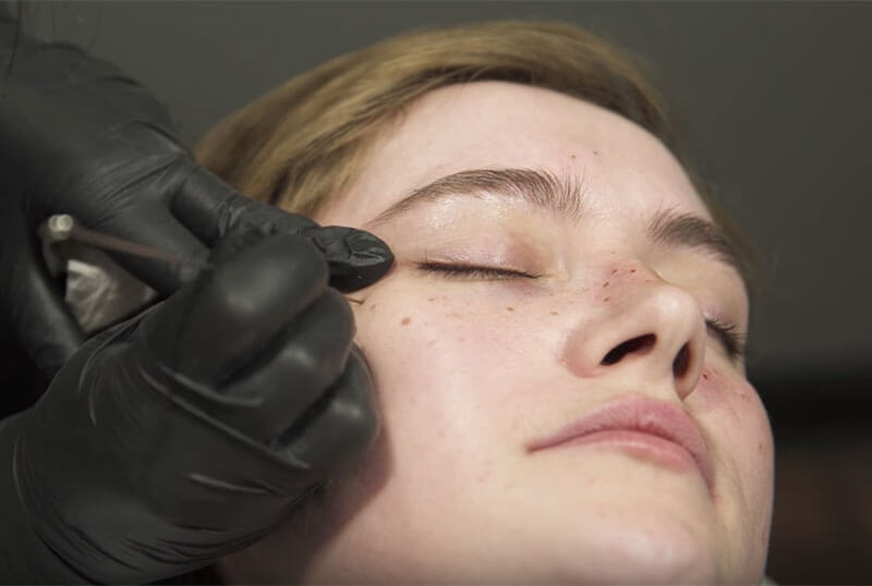 Freckle tattoos treatment