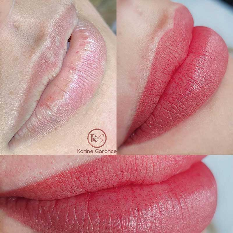 aquarelle-lips-pmu-treatment