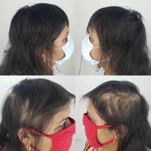 scalp micropigmentation on long hair