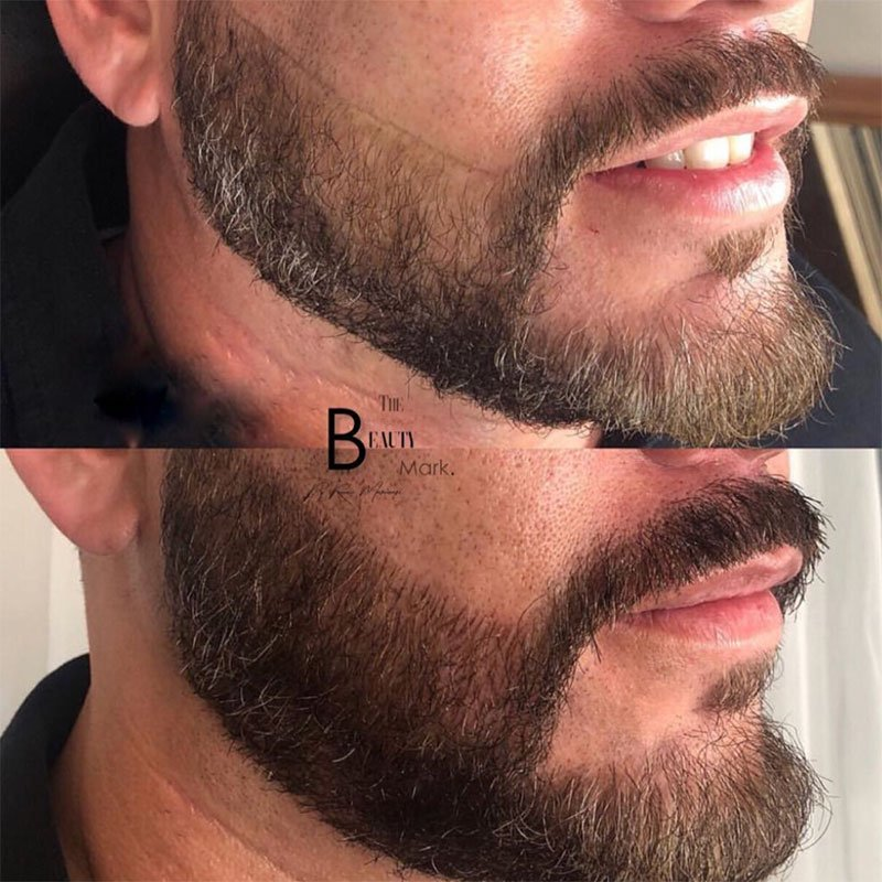 What is Microblading for Mustache and Beard?