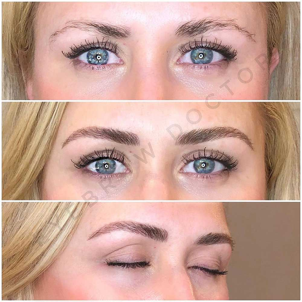 Is microblading safe?