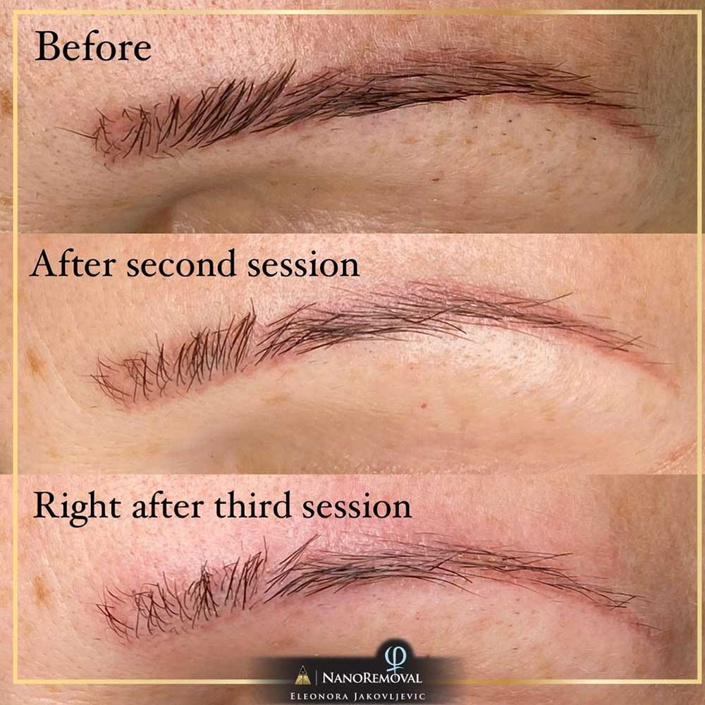 Can Microbladed Eyebrows Be Removed?