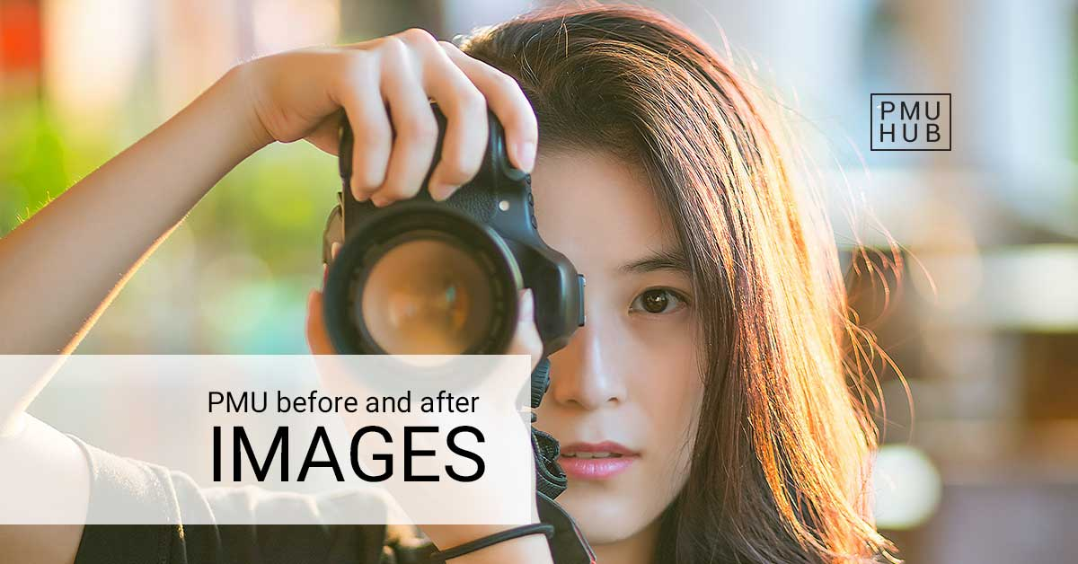 pmu-before-and-after-images