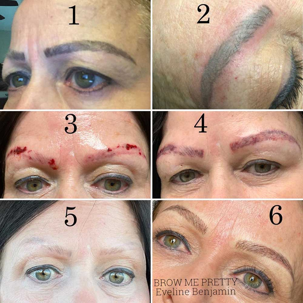 What are the Physical Consequences of Bad Microblading?