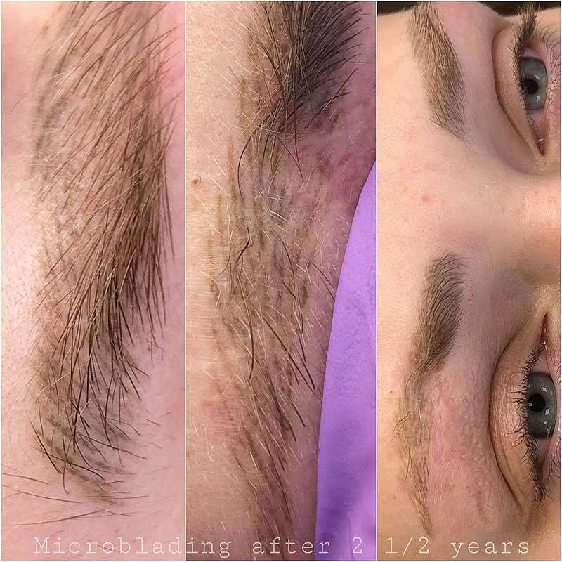 Will Microblading Fade Completely After 2 years?