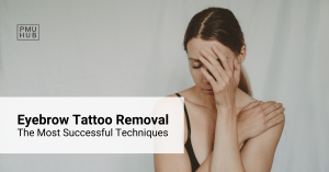 Eyebrow Tattoo Removal - How to Get Rid of an Unwanted Brow Tattoo Effectively