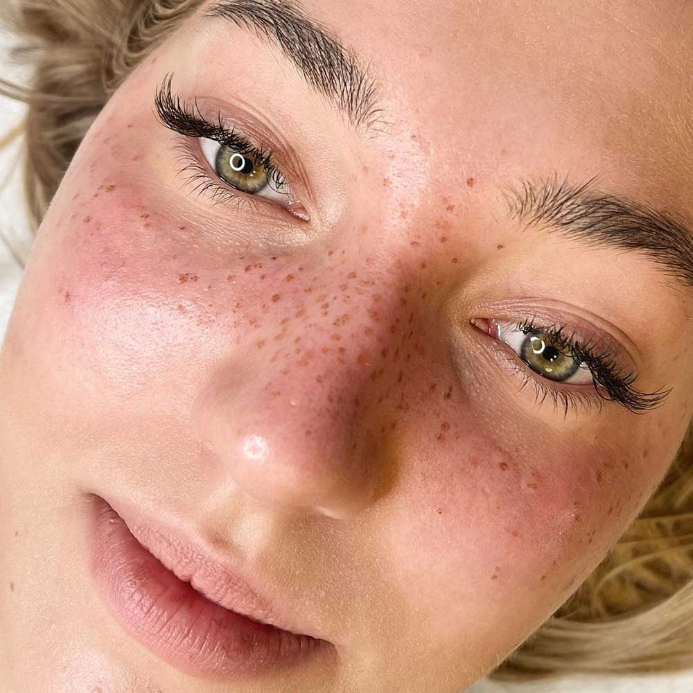 Semi permanent Makeup for face - Freckle Tattoo