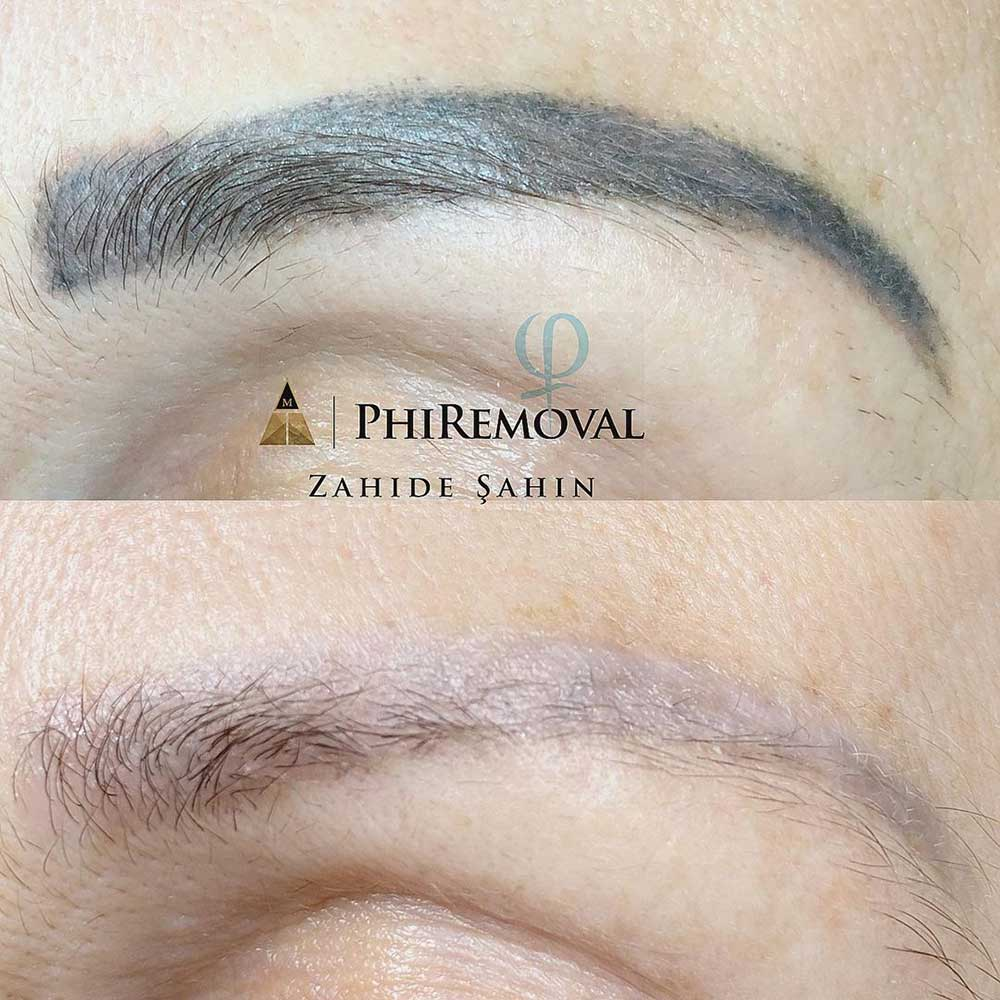 Powder Brows Removal - The Techniques That Work