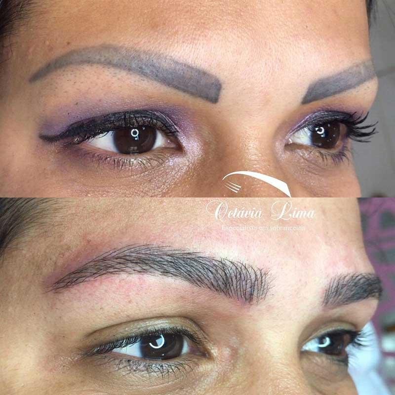 Laser Eyebrow Tattoo Removal