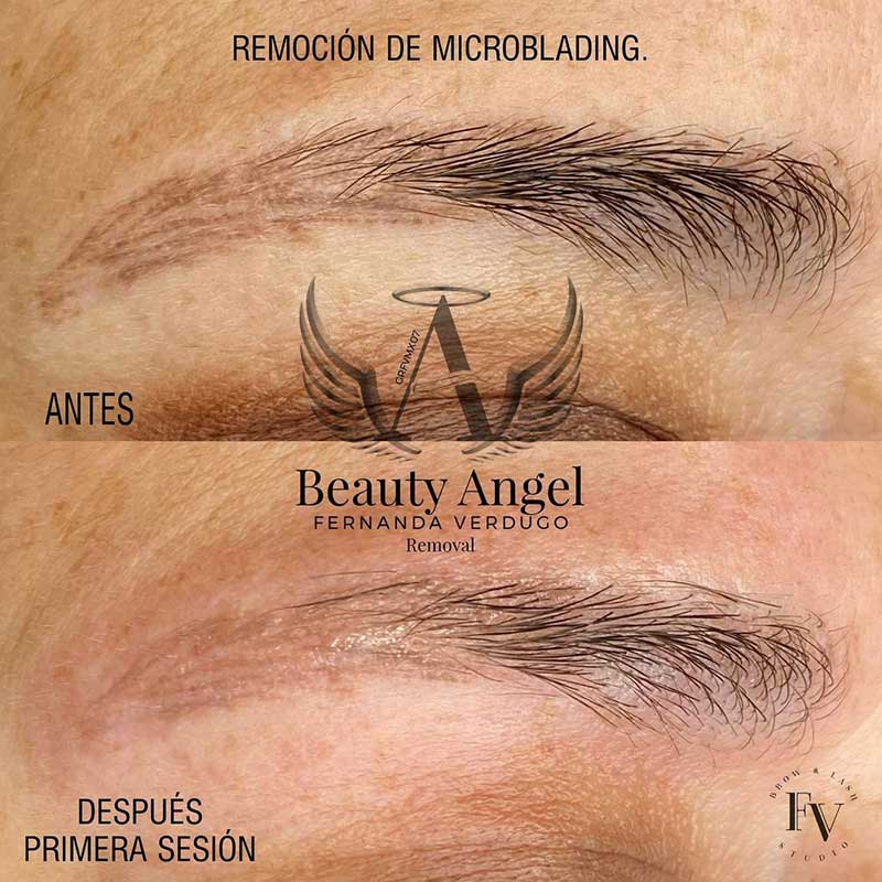 Is Microblading Removal Possible?