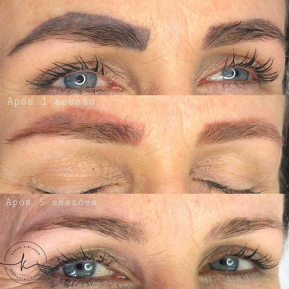 Powder Eyebrows Laser Removal