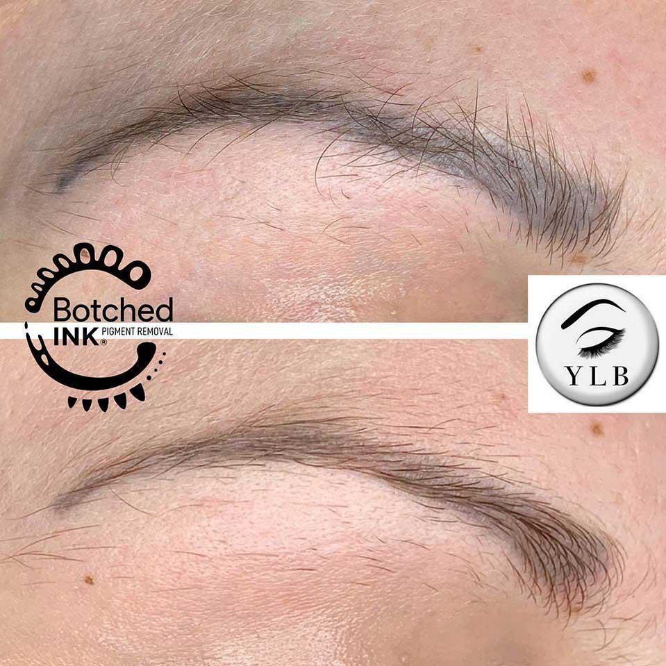 Powder Eyebrows Saline Removal Treatment