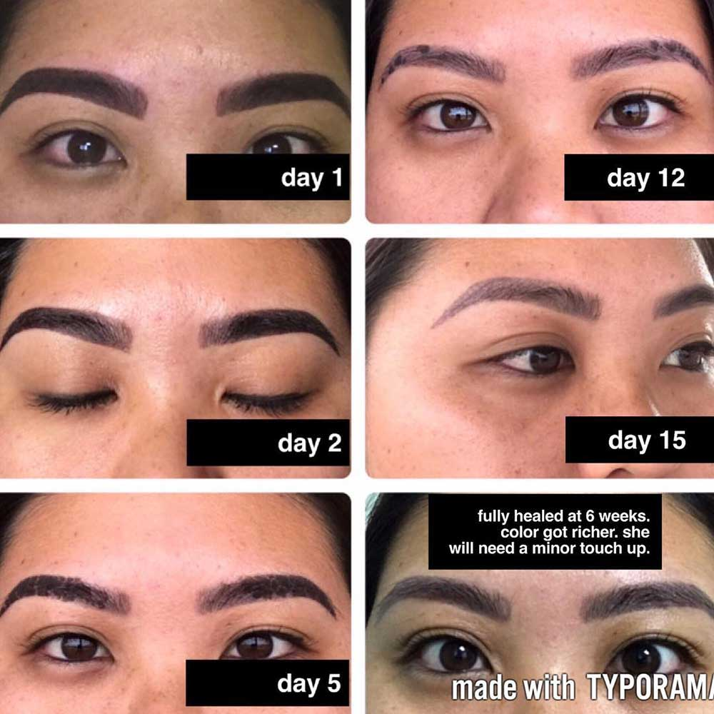 What Does Powder Brows Scabbing Look Like Day by Day?