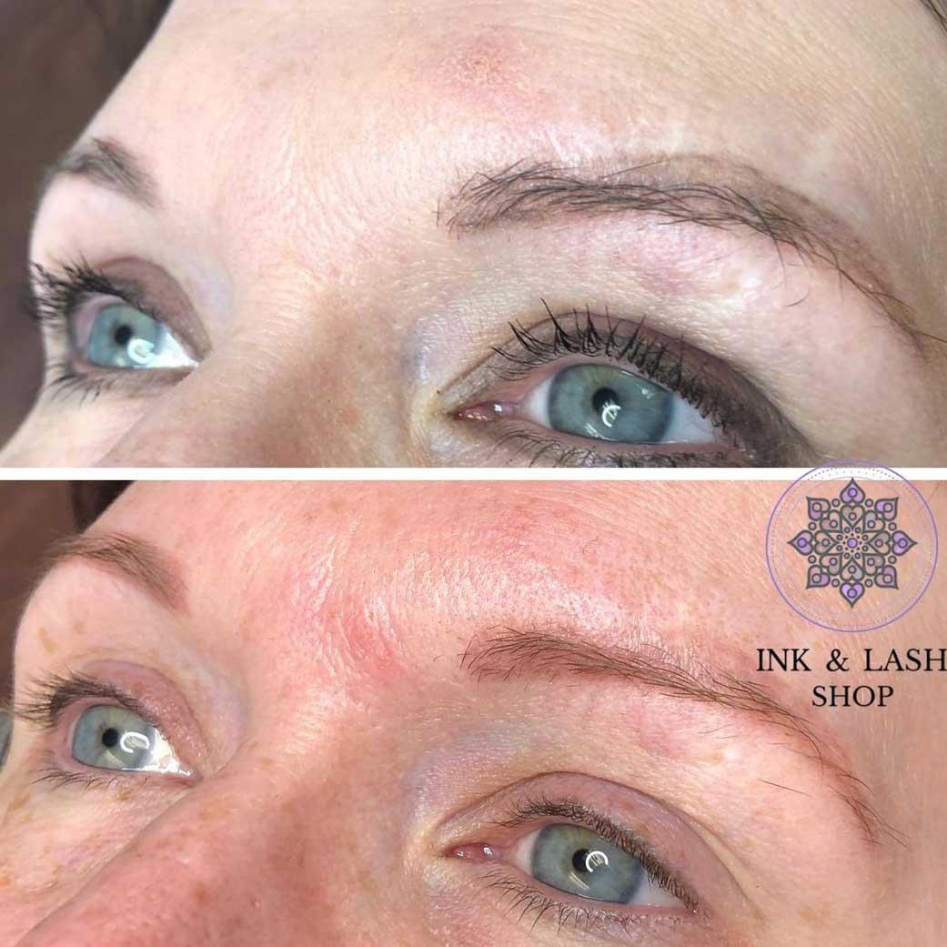 Pros of Saline Eyebrow Tattoo Removal