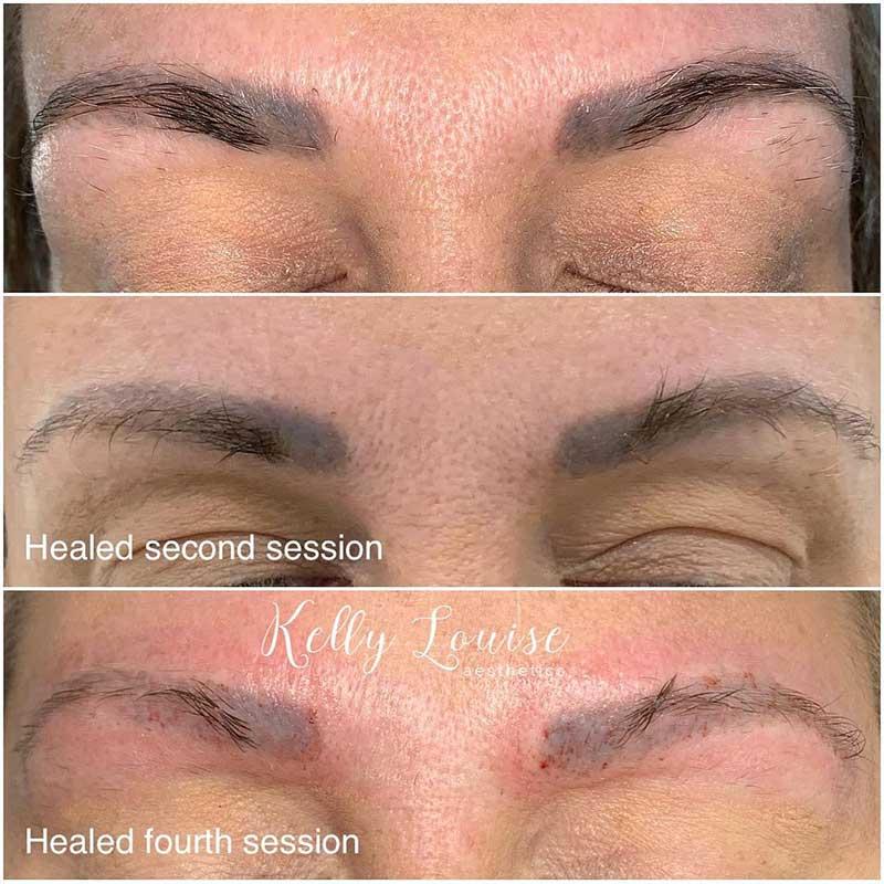 Saline Eyebrow Tattoo Removal
