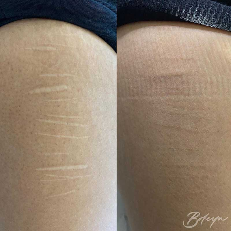 Are Stretch Marks Tattoos Effective?
