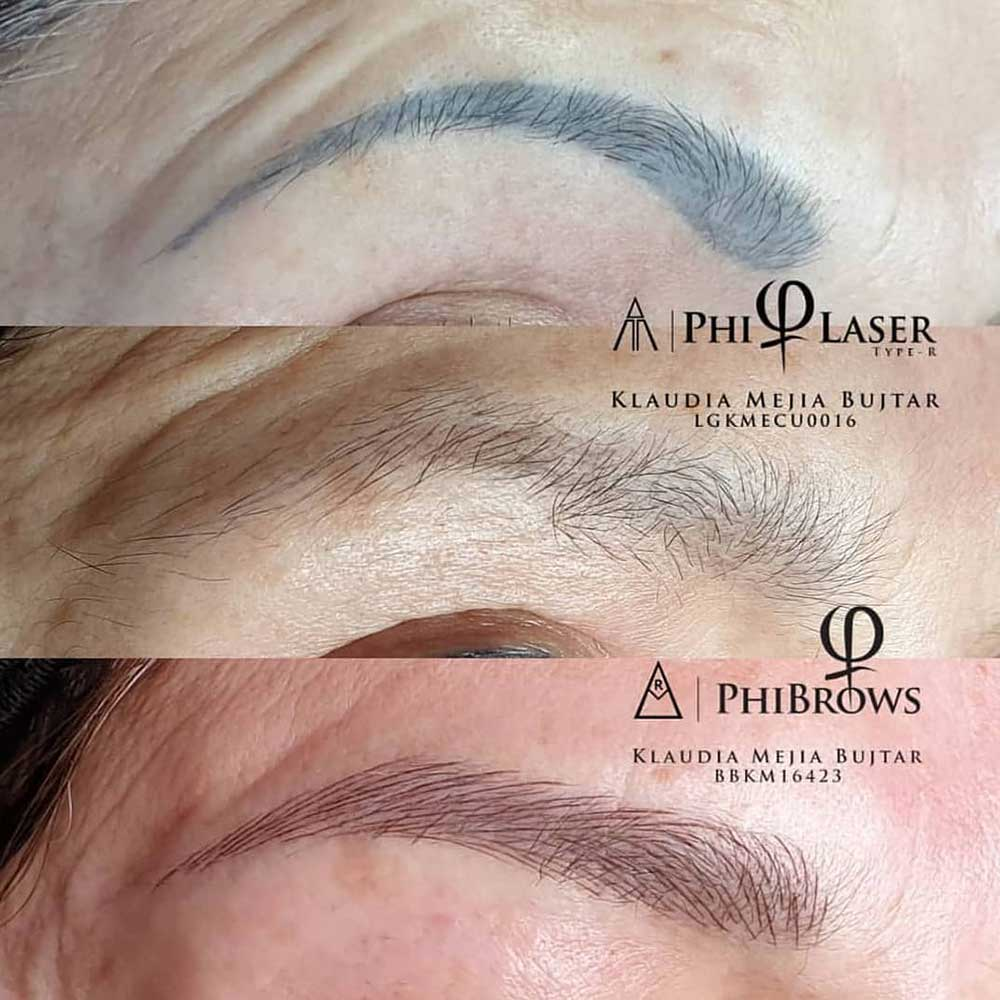 The Pros and Cons of Treatments Compared - Eyebrows Tattoo and Microblading