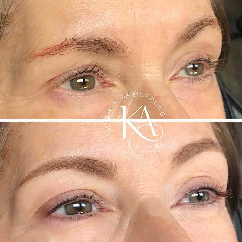 Fixing the unattractive consequences of microblading not fading