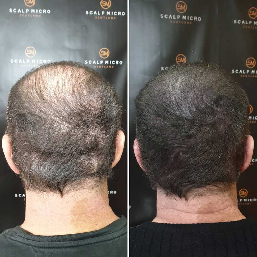 Scalp micropigmentation for old people