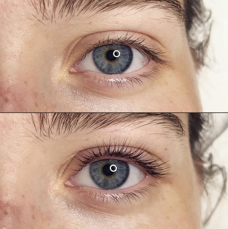 A lash lift is an eyelash enhancement procedure that lifts your lashes upwards into an attractive curl.