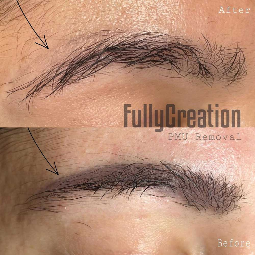 How Can Eyebrow Tattoos Be Removed?