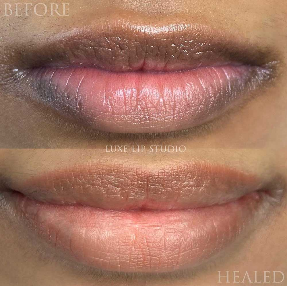 Dark lip neutralization tattoo makes the lips look like they're naturally rosy