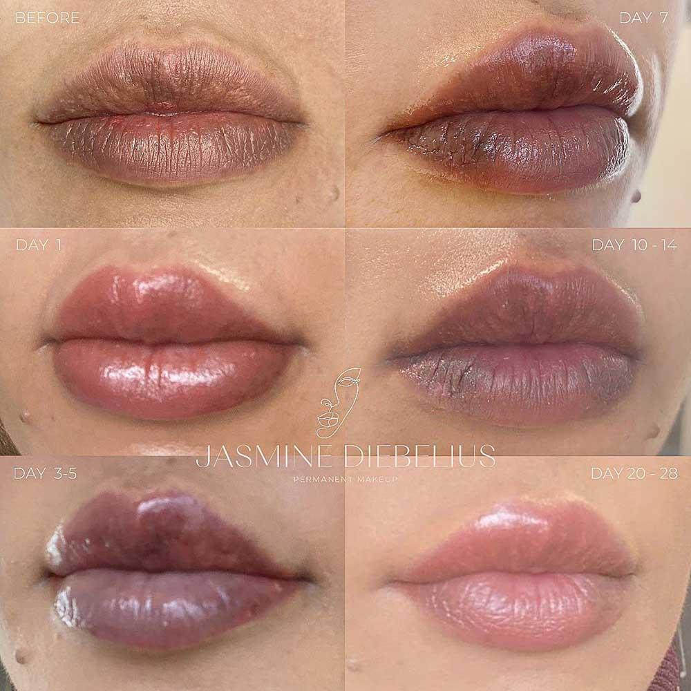 Dark Lips Neutralization Aftercare