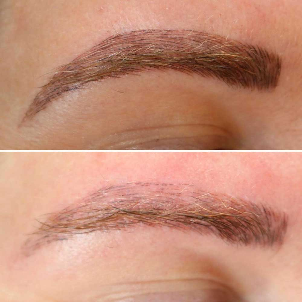 Emergency Permanent Makeup Removal