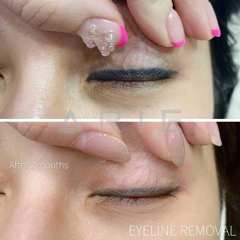 Permanent Eyeliner Cons