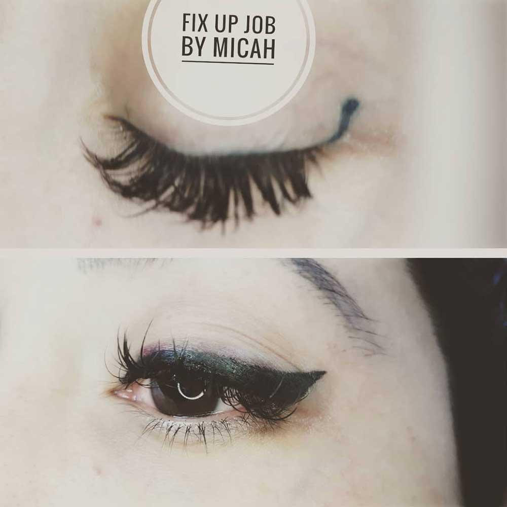 Eyeliner Tattoo Correction Treatment