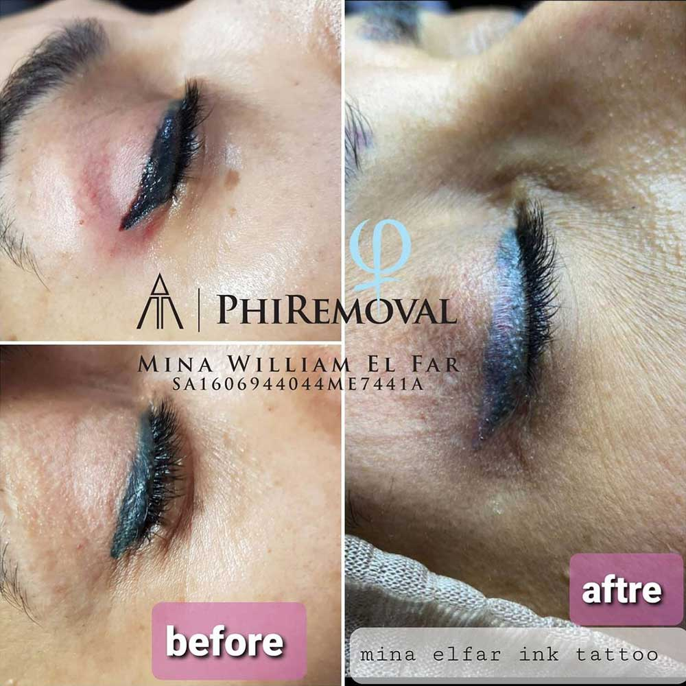 Eyeliner Tattoo Gone Wrong - Side Effects, Risks, and Fixes