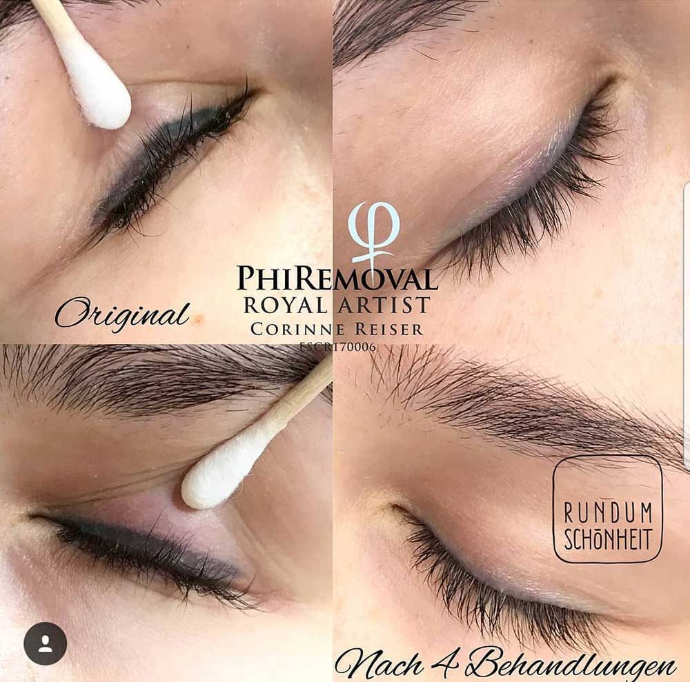How Can PMU Eyeliner Be Removed?