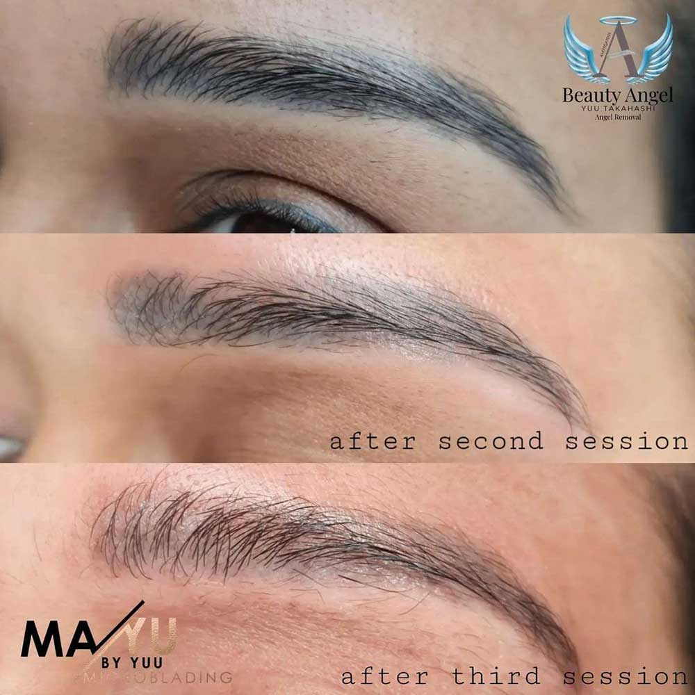 Glycolic acid permanent maakeup removaal sessions