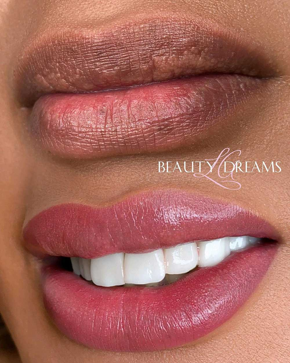 For most people, lip tattoos last about 2 years without additional touch ups.