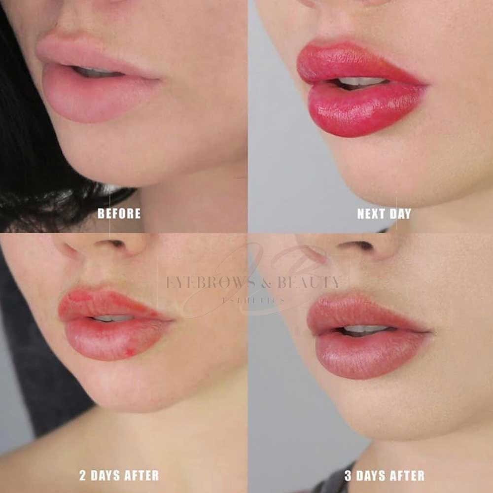 Lip tattoo aftercare day by day