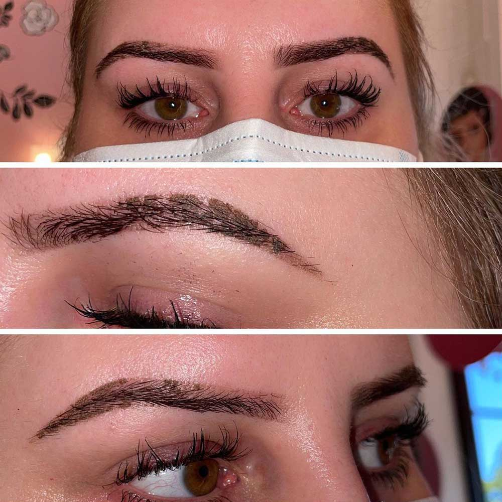 Can You Prevent Microblading Scabbing?