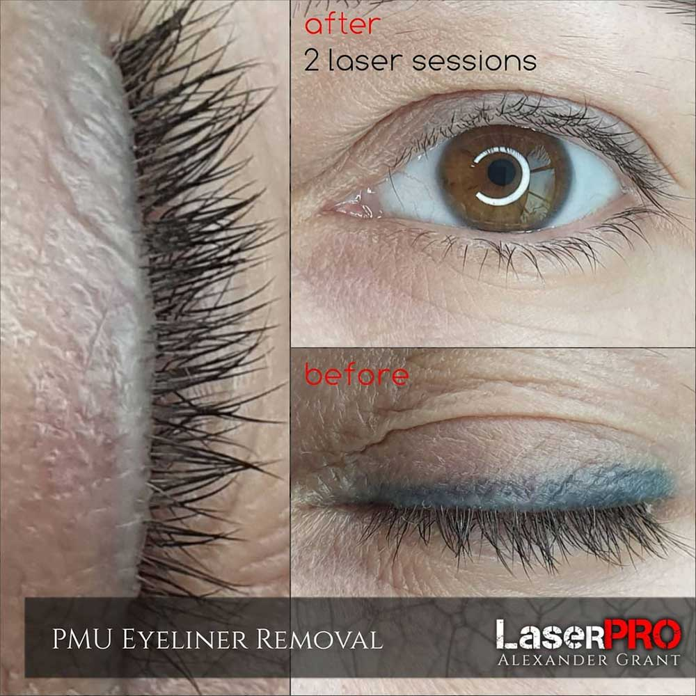 Eyeliner Tattoo removal with Laser