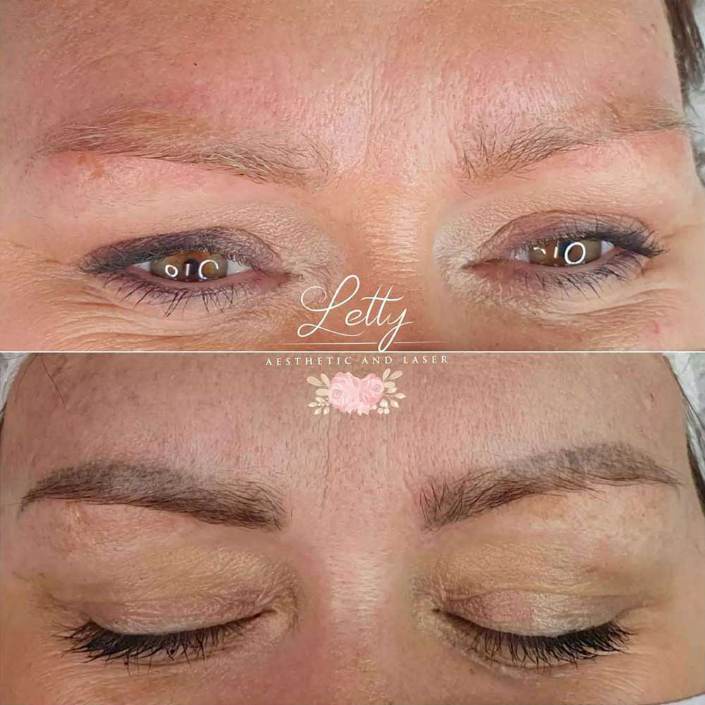 How Much Does Laser Permanent Makeup Removal Cost?