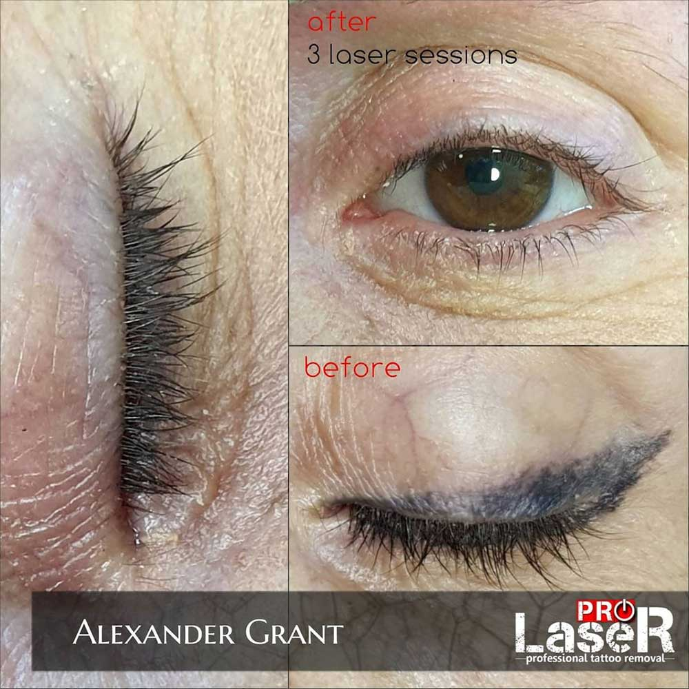 Laser Permanent Makeup Removal
