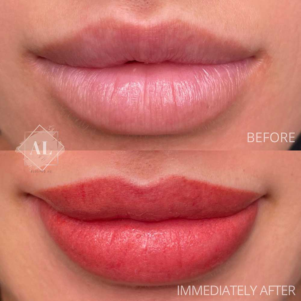How Is the Lip Blush Treatment Done?