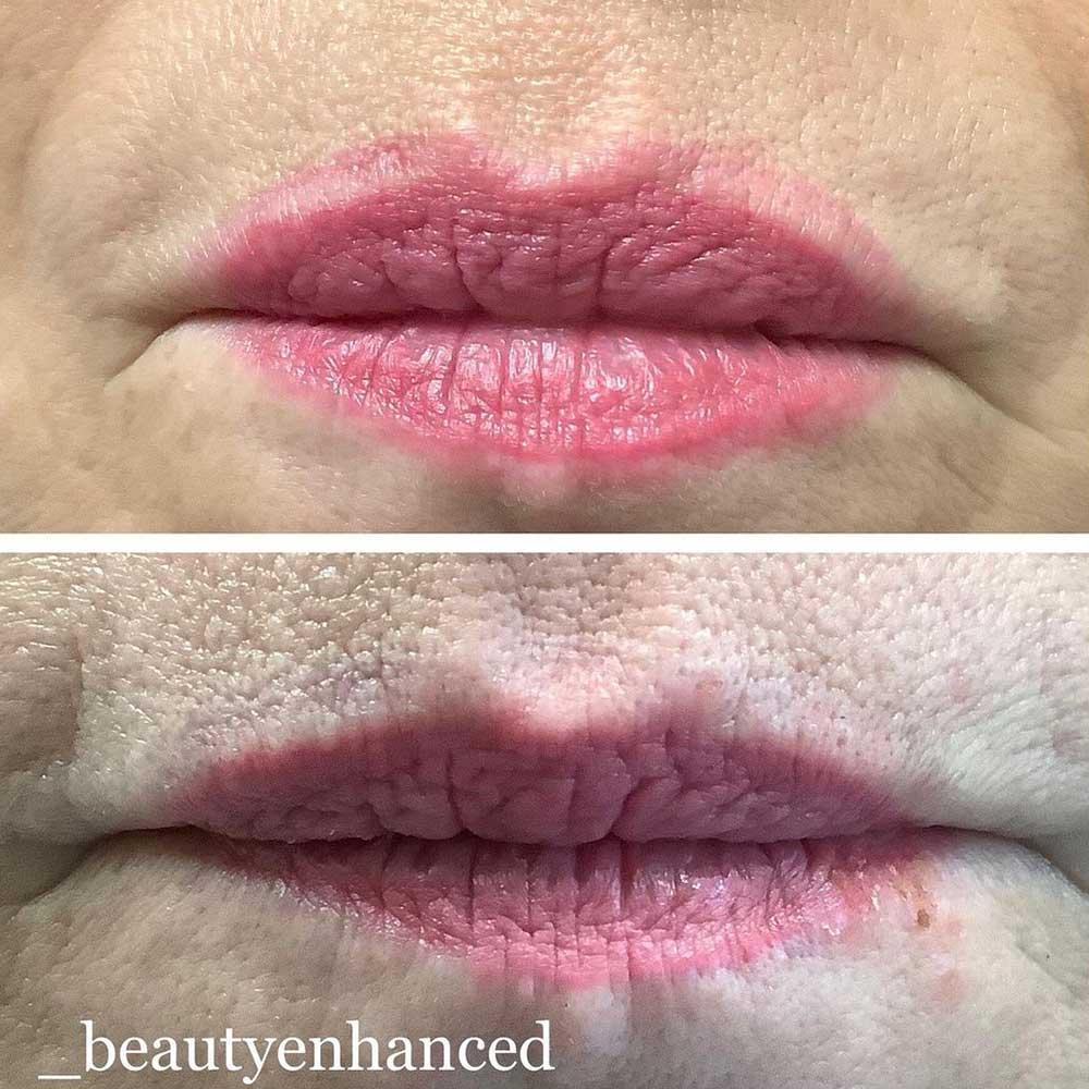 PMU Lip Liner Laser Removal
