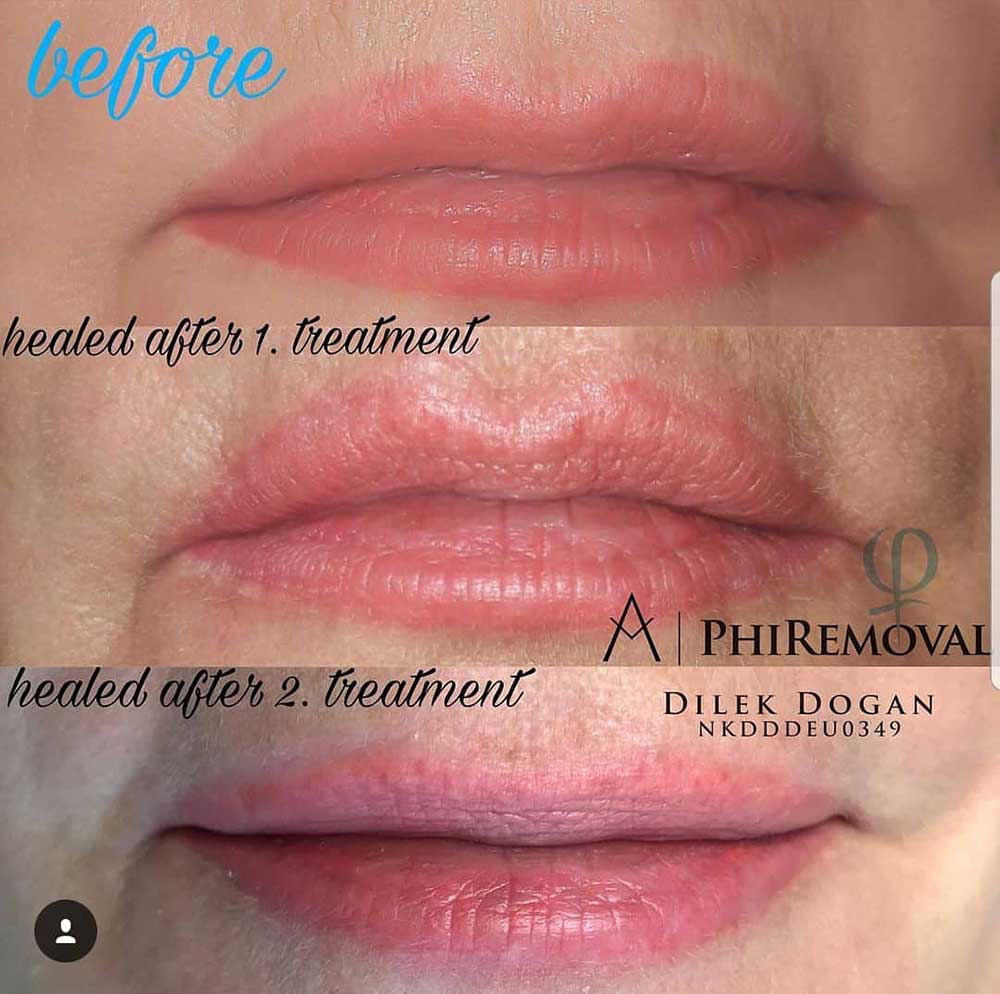 How Can Lip Tattoos Be Removed?