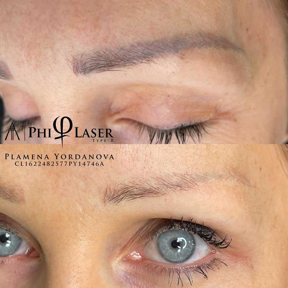 PMU & Microblading Removal Before and After