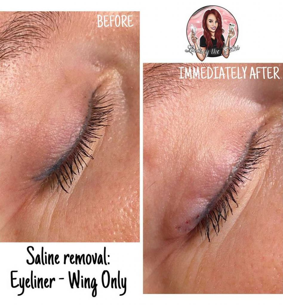 Partial Eyeliner Tattoo Removal