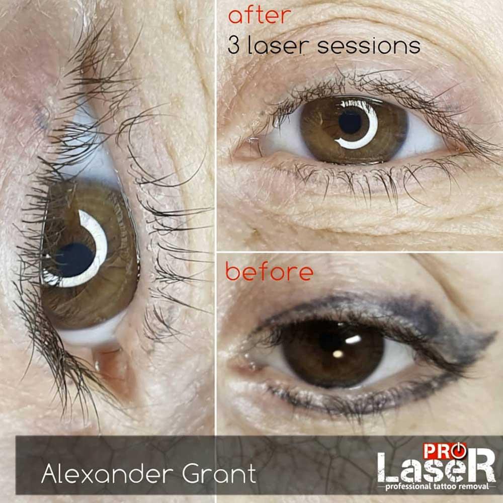 Permanent Eyeliner Laser Removal