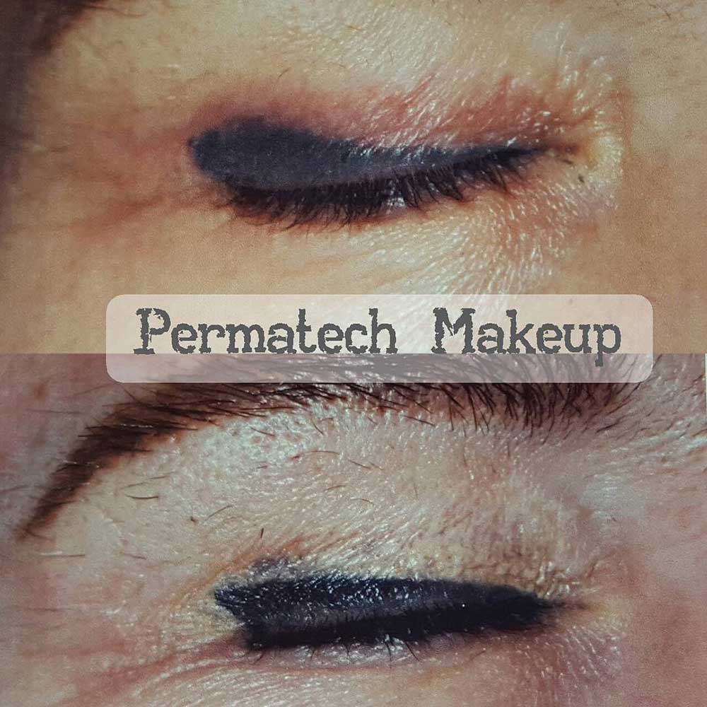 Once injected into the skin, pigments may migrate outside of the initial shape.