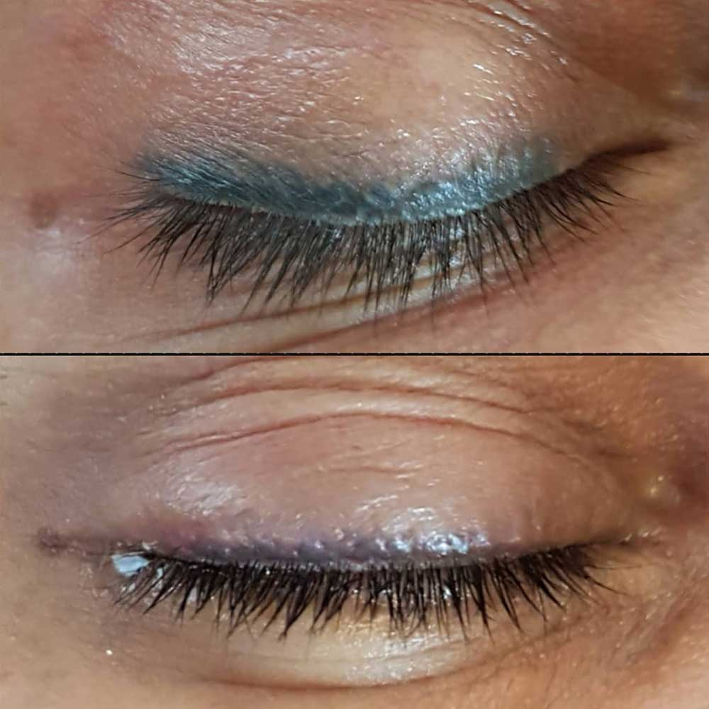 Possible problems with permanent eyeliner tattoo