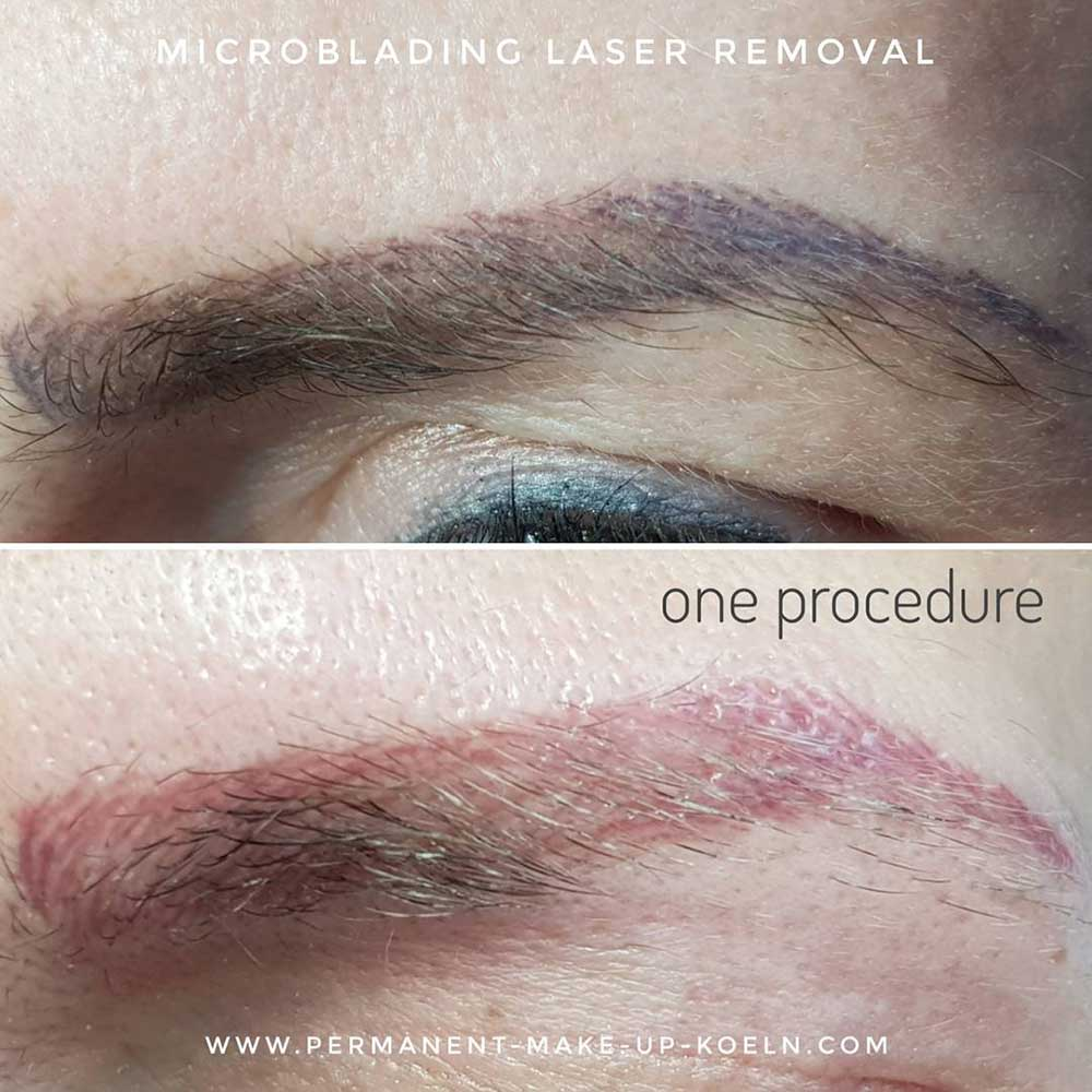 What PMU Can Be Removed With Laser?