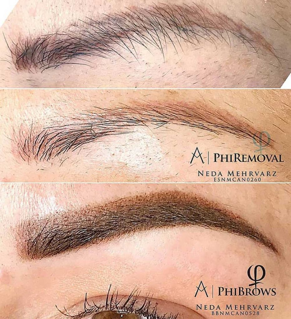 PMU Removal is the process of removing unwanted permanent makeup